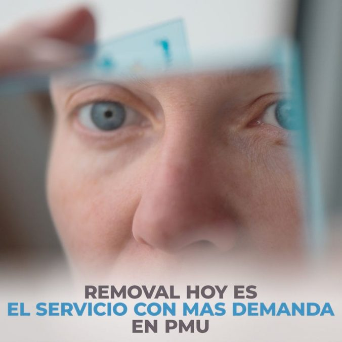 01-removal-is-the-most-in-demand-service-in-pmu-today-1-676x676