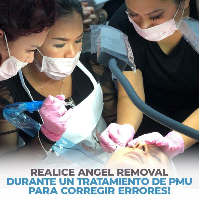 04-perform-angel-removal-during-a-pmu-treatment-1-676x676